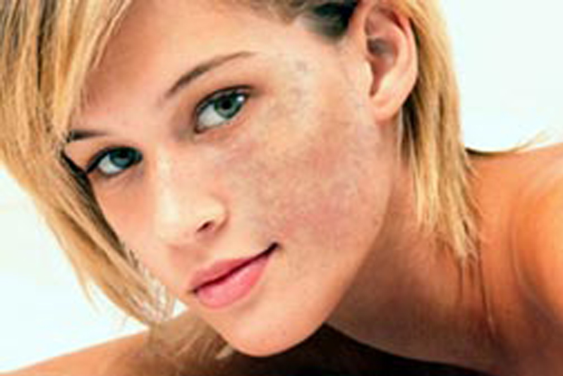 how to get rid of red pigmentation